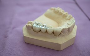 separacja-amalgamatu-dentysci